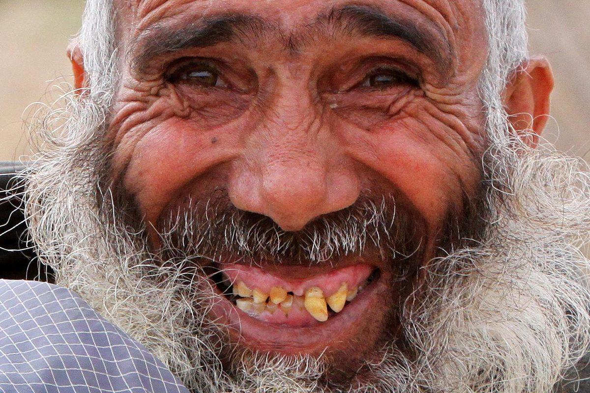 Happy Zahnschmerz-Tag! Die irrsten Rekorde mit Zähnen